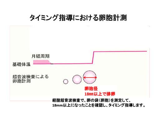 タイミング指導における卵胞計測