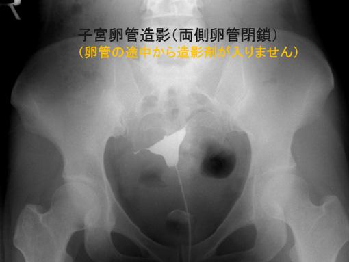 子宮卵管造影(両側卵管閉鎖)