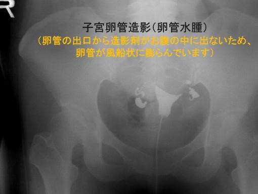 子宮卵管造影(卵管水腫)