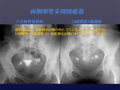 子宮卵管造影(両側卵管采周囲癒着)
